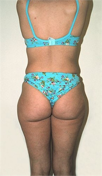 Tumescent Liposuction New York City Westchester County
