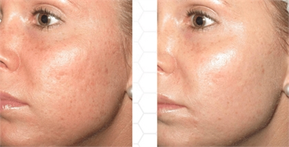 Microneedling New York City Before and After