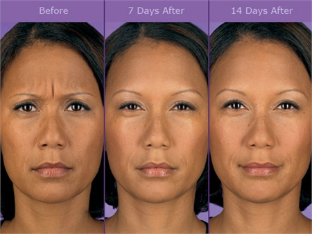 Before and After Botox Treatment - Wilmington, DE