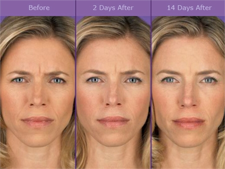 how to get rid of neck wrinkles with botox