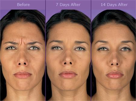 Botox 194 174 Wilmington Dermatologist Delaware Valley